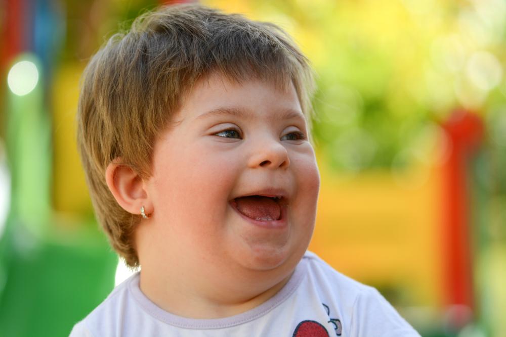 Даун синдром детей